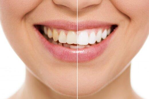 Jak najskuteczniej wybielić zęby?