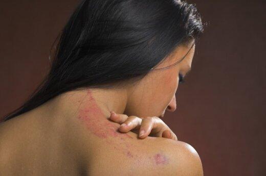 Как избавиться от рубцов на коже