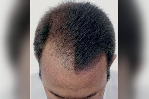 Plaukų slinkimas