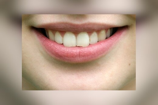 Dantys, šypsena