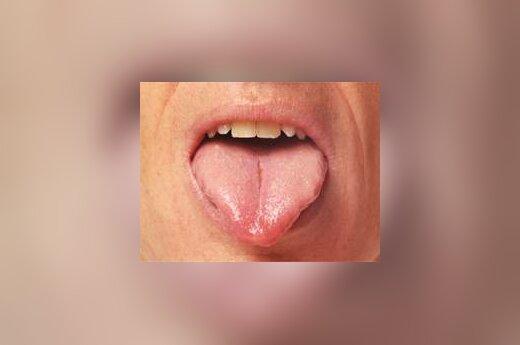Liežuvis