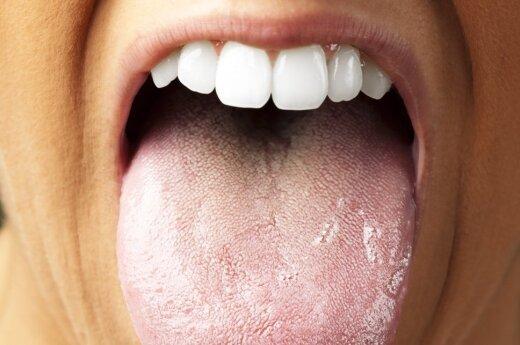 Organizmo veidrodis: kokias ligas atskleidžia liežuvio spalva ir forma?