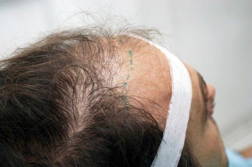 Turkai vilioja turistus pigesnėmis plaukų persodinimo operacijomis