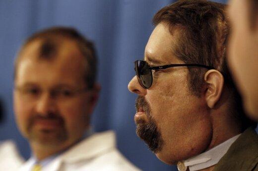 USA: Człowiek bez twarzy wziął ślub